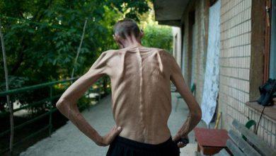 Photo of Майдан опасен для здоровья — будьте осторожны