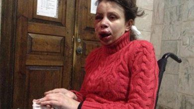 Photo of Подозреваемые по делу Чорновол имеют отношение к оппозиции
