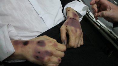 Photo of Пытки в застенках одесского Гестапо дошли до ООН