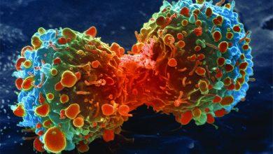 Photo of Как побороть рак? Методы лечения